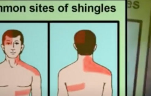 Can Sunlight Worsen Shingles Disease?