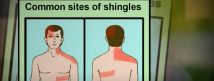 Can Sunlight Worsen Shingles Disease?