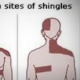Herpes Zoster Is Also Known As Shingles