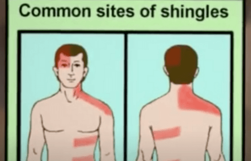 Herpes Zoster Shingles Should Be Avoided
