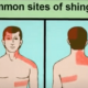 Home Remedies May Ease Shingles Rash Pain