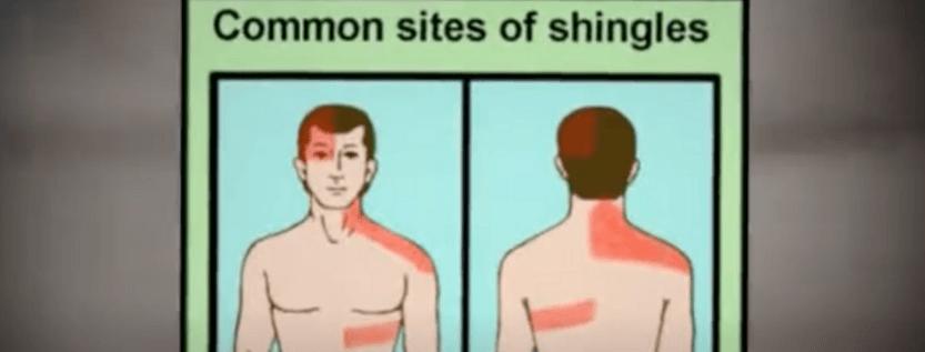 Home Remedies May Ease Shingles Rash Pain