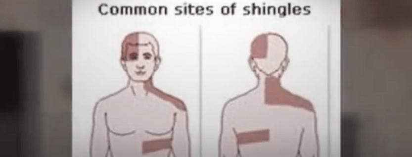 Is Shingles Rash A Disease?