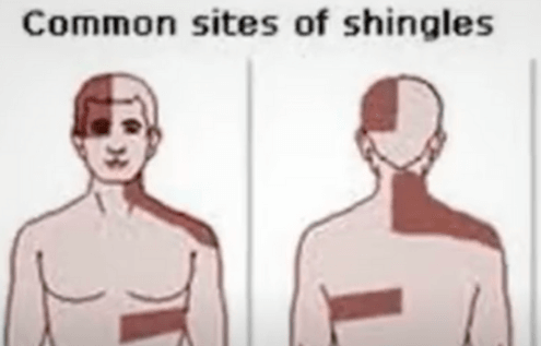 Is Shingles Rash A Viral Infection?