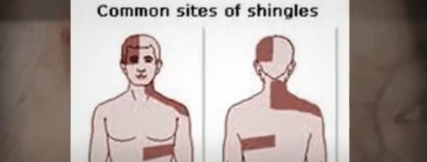 Is Shingles Rash A Viral Infection?