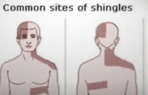 Shingles Disease Is Common In Seniors