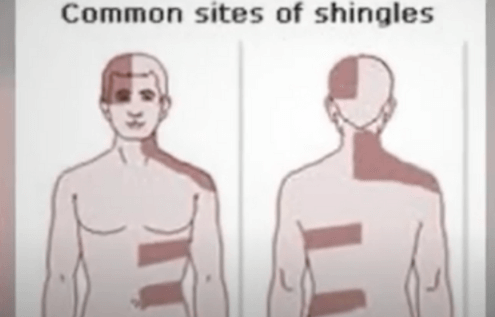 Shingles Information Will Help A Lot