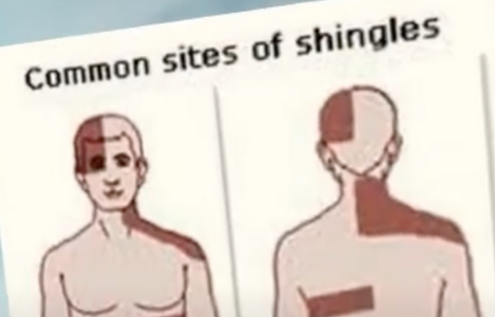 Shingles Virus Can Trigger At A Later Stage