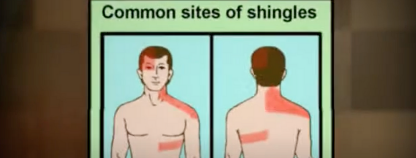 Shingles Virus Is Related To HSV