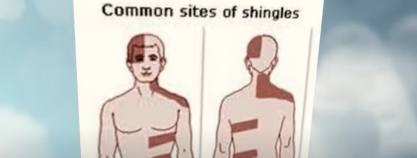 What Are The Remedies For Shingles Diseases?
