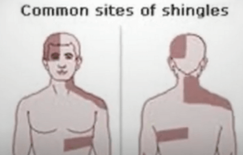 What Are The Visible Signs Of Shingles Disease?