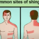 What Is The Most Important Shingles Information?