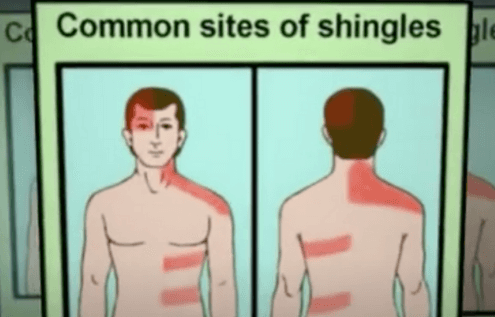 What Is The Virus That Causes Shingles Rash?
