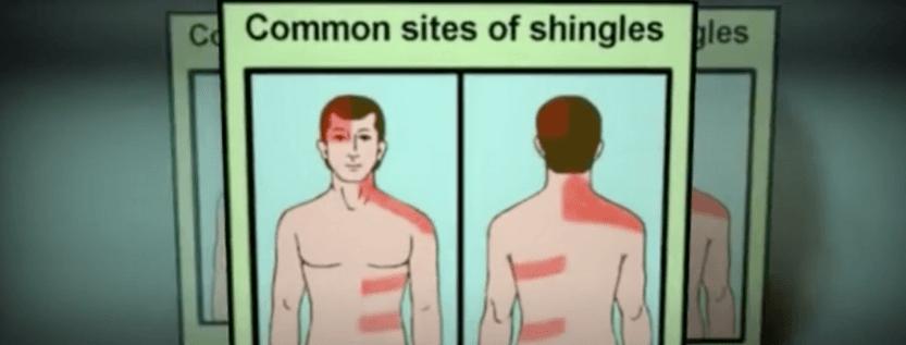 What Is The Virus That Causes Shingles Rash?