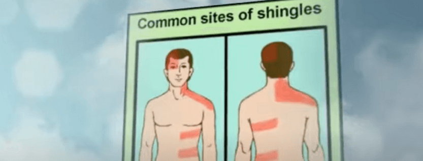 What Triggers Shingles Disease?