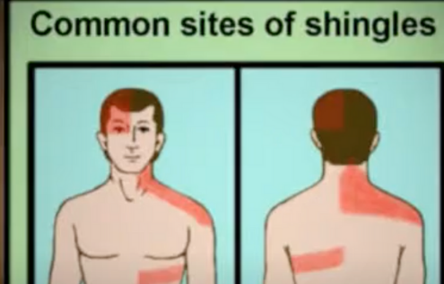 Where Can Shingles Appear?
