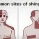 Who Has Chances Of Developing Shingles Rash?