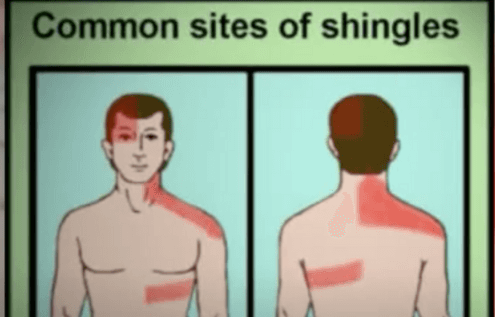 Can We Cure Shingles Rash?