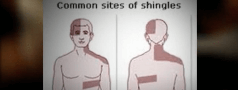 Factors That Triggers Shingles Virus