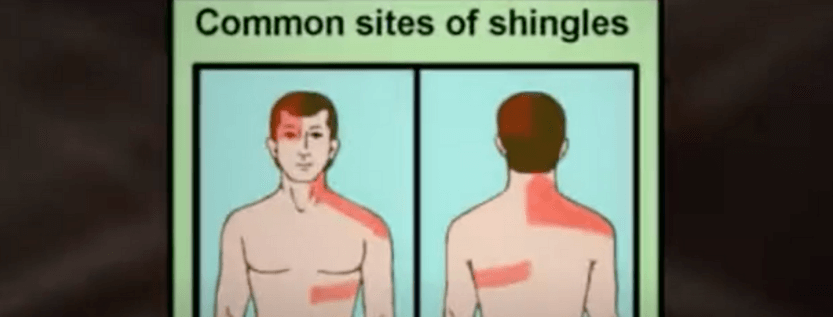 Here Is The Most Vital Shingles Information