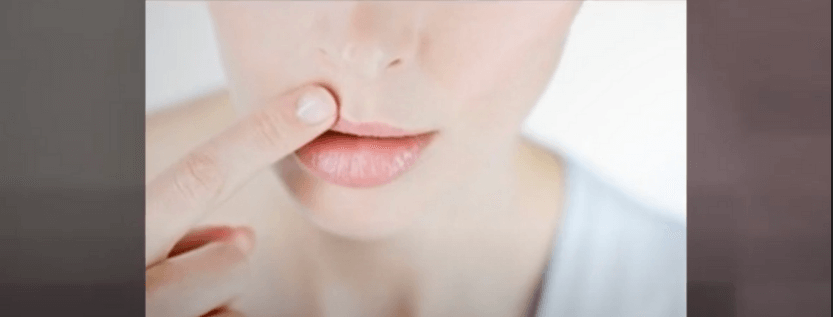 How Does Mouth Herpes Start?