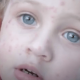 How Do Chickenpox Shingles Victims Feel?