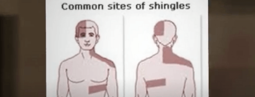 How Does Shingles Rash Start?
