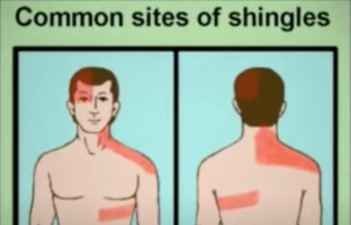 Is Shingles Rash Painful?