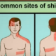 Is There An Alternative To Shingles Treatment?