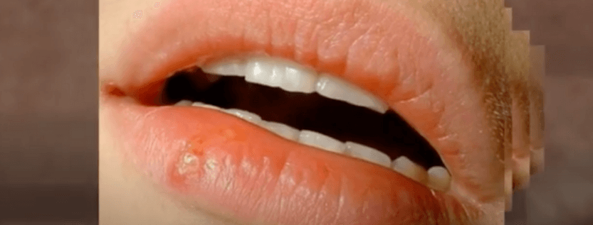 Is There Something That Can Cure Skin Herpes?