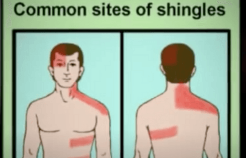 Shingles Information To Help Deal With Virus