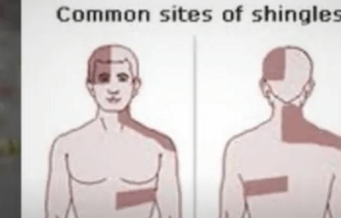 Shingles Remedies That Kills Virus