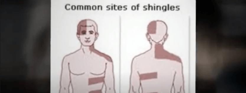 The Virus That Causes Shingles Rash