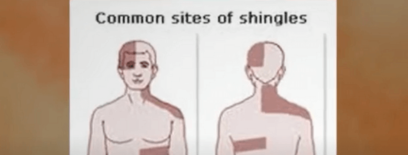 There Is An Effective Shingles Treatment