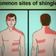 What Causes Shingle Virus In Adults?