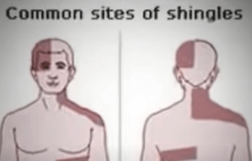 What Happens To A Person With Shingles Disease?