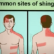 What Virus Causes Herpes Zoster Shingles?