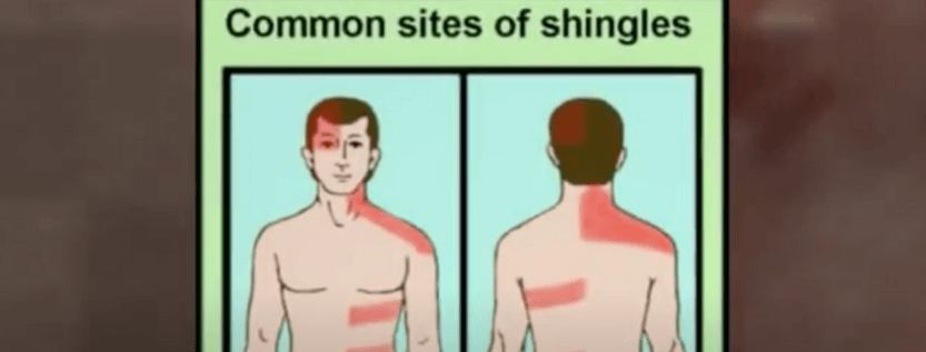 When Does The Shingles Virus 2nd Attack Occur?