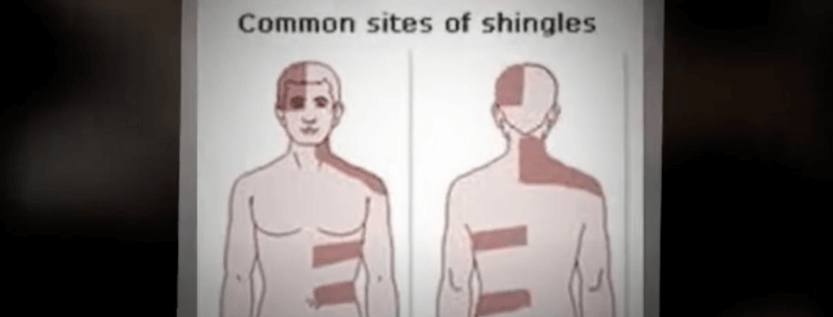 What Is The Herpes Zoster Shingles Virus?
