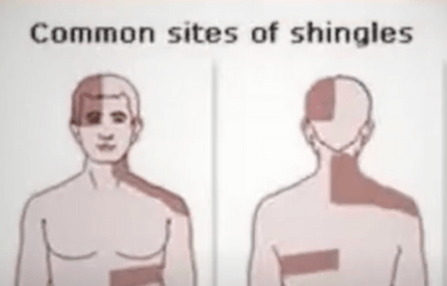 Shingles Information Will Help The Patients