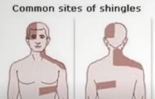 Will Shingles Virus Stay In Your Body For A Lifetime?