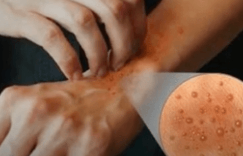 You Can Feel Pain With Skin Herpes